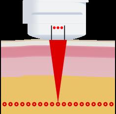 Medika HiFU operating scheme