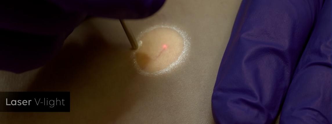 Medika V-Light diode laser for closing blood vessels