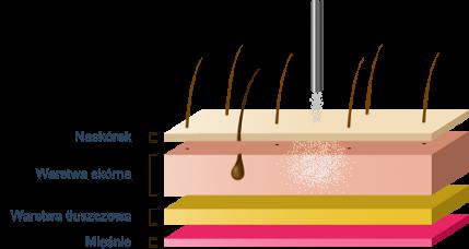 Medika Plasma ARC - schemat działania